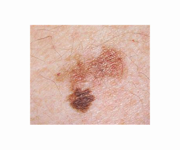 melanoma-cancer-skin-hg.jpg